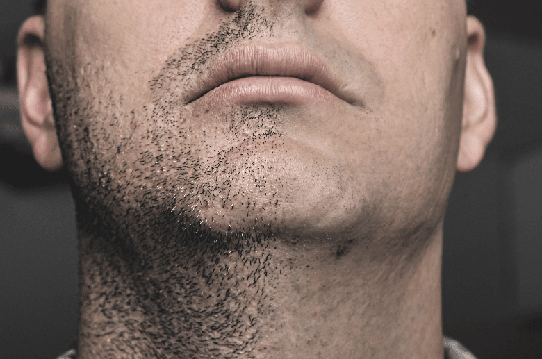 Image of mans chin with a half shaved face
